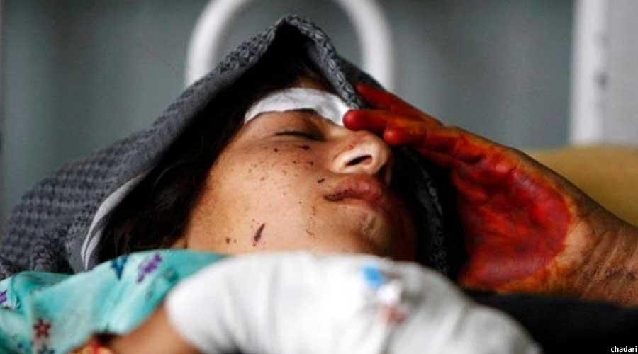 یکی از بانوان قربانی خشونت در افغانستان