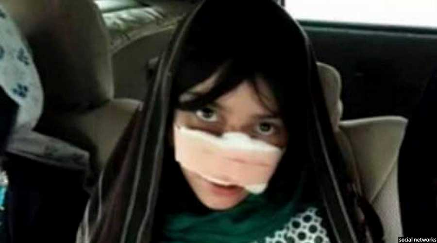 بینی ریزهگل توسط شوهرش بریده شده بود