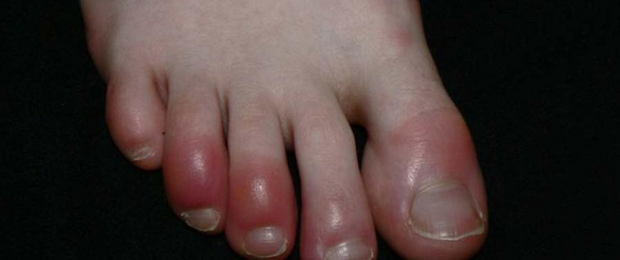disadvantage-of-Sandal