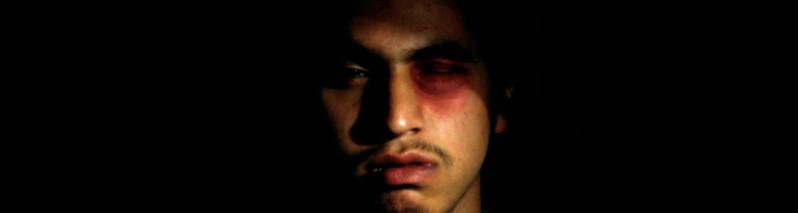 از قطع آلت تناسلی تا رد مقاربت جنسی؛ ۸ مورد خشونت علیه مردان در شمال افغانستان