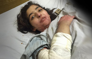 سال ۲۰۱۶؛ روز جهانی حقوق بشر و روزگار فاجعهبار زنان افغان