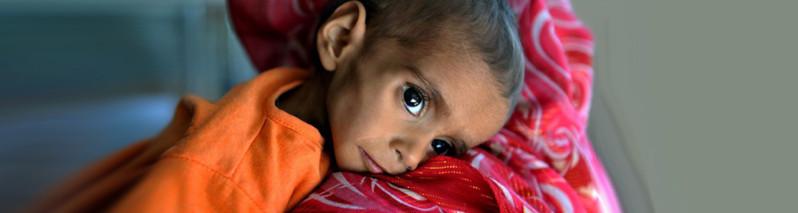 سونامی خاموش دیگر؛ سوء تغذیه گستردهی کودکان در جنوب افغانستان