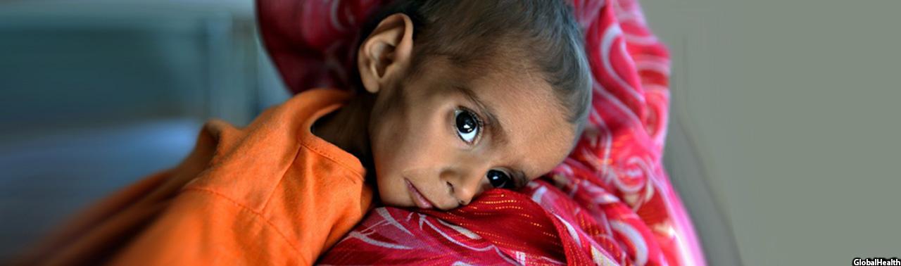 ناامنی و فقر؛ دلایل عمده سوء تغذیه ۲ میلیون کودک در افغانستان