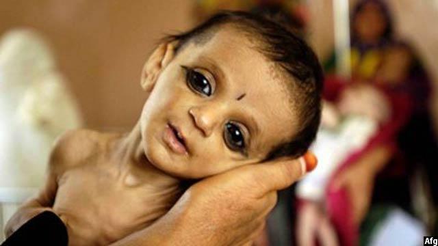 بیشترین کودکان سوتغذیه در جنوب افغانستان گزارش شده است