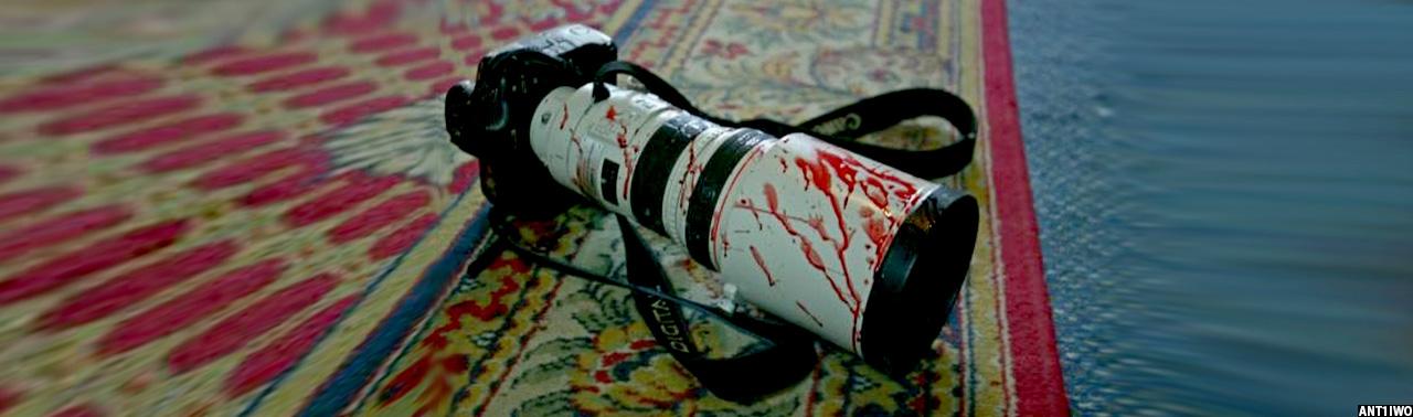 ادامه خشونت با خبرنگاران افغانستان؛ پولیس ولایت فراه یک خبرنگار را لتوکوب کرد