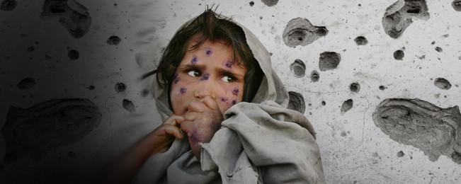 یافته های تکان دهنده از قربانیان غیرنظامی جنگ افغانستان؛ ۱۰ سال گذشته چند افغان را به کام مرگ کشانده است؟
