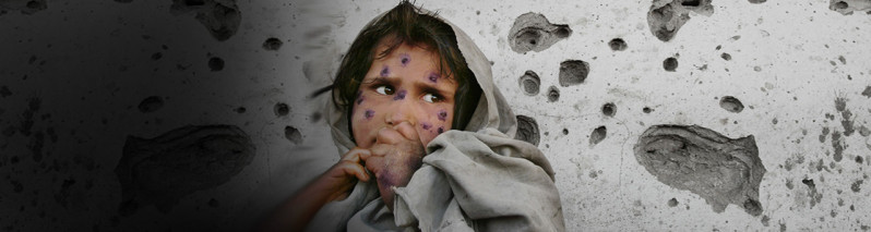قربانیان بیگناه جنگ؛ تاکید بر حفاظت از کودکان در افغانستان