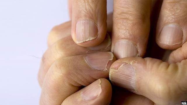 کمبود کلسیم یکی دیگر از اضرار جانبی استفاده از پروتینهای مصنوعی میباشد