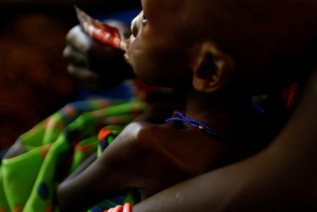مادر در حال غذا دادن به پسرش در یکی از شفاخانه های تحت حمایت یونیسف (UNICEF) در سودان جنوبی. تصویر از رویترز