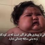 کودک هشت ماه هندی که 17.24 کلو وزن گرفته است