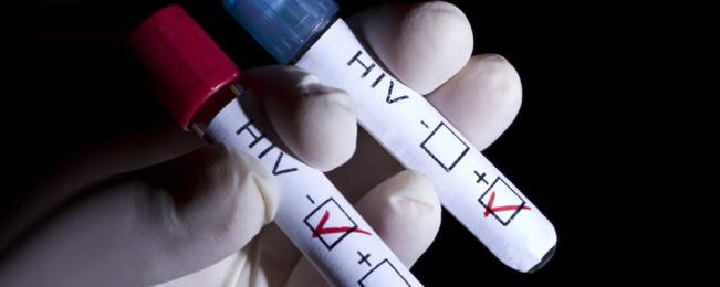 نگرانی وزارت صحت افغانستان از گسترش بیماری ایدز