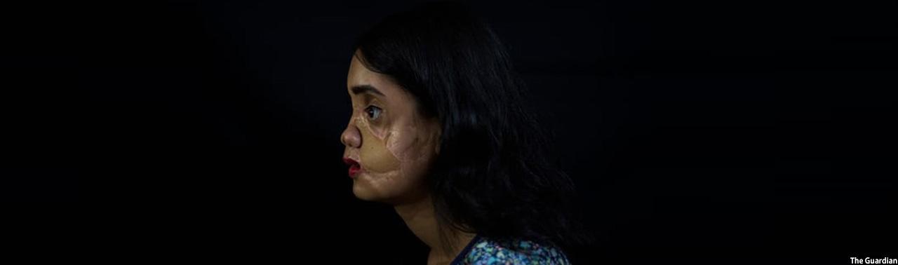 پس از رد پناهندگی در آمریکا؛ زندگی جدید زن مجروح افغانستانی در کانادا