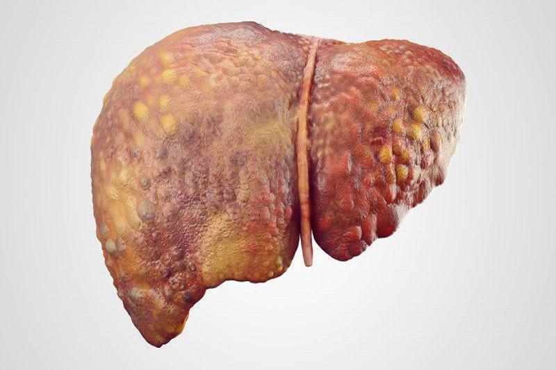 کبد دومین عضو بزرگ بدن انسان است که وظیفه آن رد کردن تمام مواد غذایی و نوشیدنی مصرف شده از یک فیلتر است
