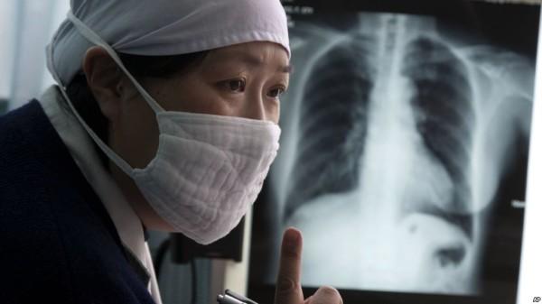 وزارت صحت عامه افغانستان، در آمار سال گذشته از بیماری توبرکلوز گفته بود که سالانه 12 هزار نفر قربانی این مرض میشوند