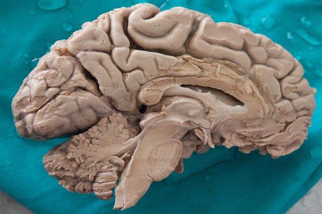 ، مغز انسان تنها مغزی است که به مرور کوچک میشود.