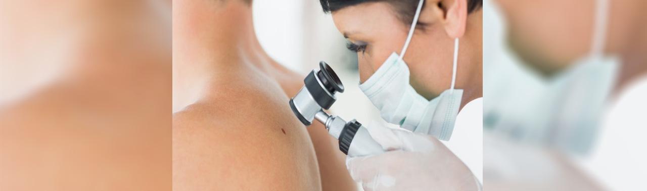 ملانوما: ۸ نشانه سرطان پوست که بیشتر مردم نادیده می گیرند