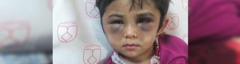 شکنجه شوکه آور دختر ۴ ساله افغان در ایران
