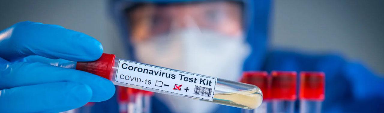 ثبت ۱۰۵ موردتازه در افغانستان؛ هشدار وزارت صحت از سیر صعودی شیوع ویروس کرونا در هرات