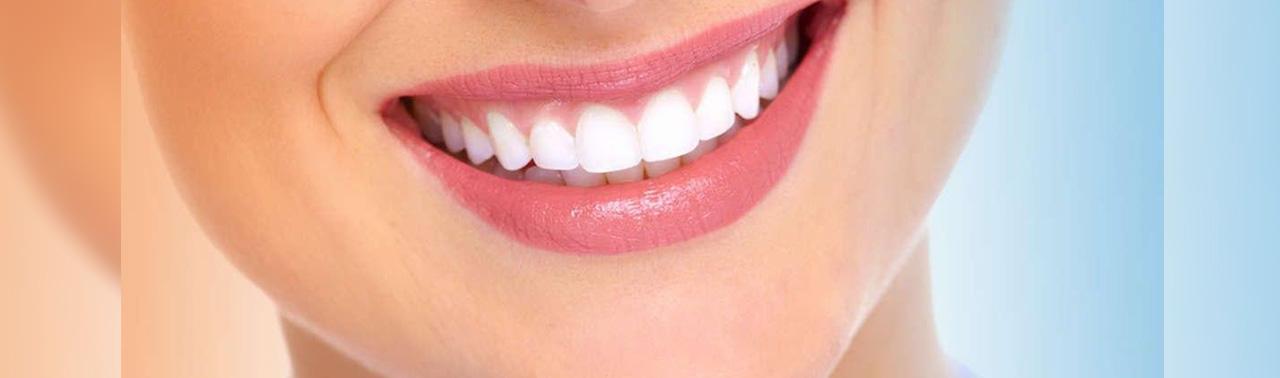 ۹ راهکار که یک لبخند هالیوودی زیبا داشته باشید