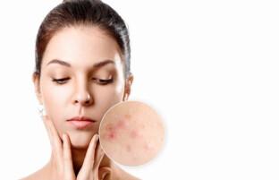 درمان سریع جای جوش: ۸ درمان خانگی موثر برای رفع لکه های ناشی از جوش و آکنه
