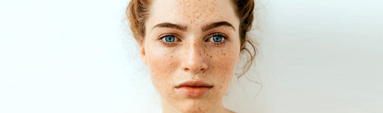 ۷ عاملی که باعث بروز لکه های تیره روی پوست میشود