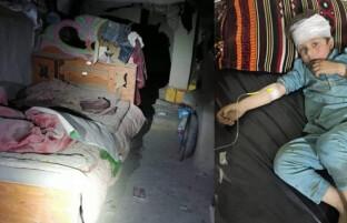 دومین حمله راکتی بر مرکز مشترک قوای افغان و خارجی در خوست؛ هفت عضو یک خانواده زخمی شدند