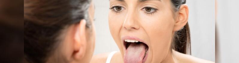 علت سفید شدن زبان: ۱۳ بیماری و اختلالی که باعث سفید شدن زبان می شوند
